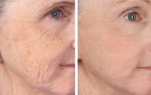 Micro Needling St Clair Penrith Area Preview