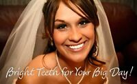 ●¤●¤WHITER TEETH FOR YOUR WEDDING in UNDER 1 HOUR¤●¤●
