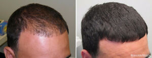 Proven Solution For Your Hair Loss Problems. Try it Now