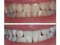 Laser Teeth Whitening £49