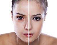 Microdermabrasion treatment with Facial only $65.00
