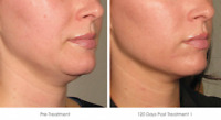 Hydra Facial - London's Only Water Resurfacing for Face & Body