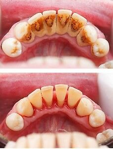 What is dental cleaning?? $50