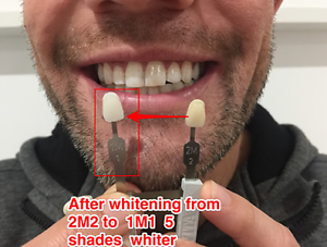 No pain teeth whitening $138 2-7 shades guaranteed in City Salon Surry Hills Inner Sydney Preview