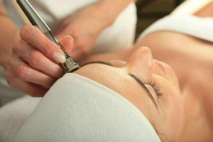 Microdermabrasion peel led treatment facial $75
