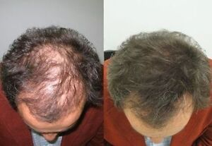 Quick and Easy Solution For Your Hair Loss Problems. Try it Now Kitchener / Waterloo Kitchener Area image 2