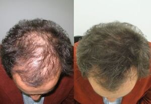 We Have A Solution For Your HairLoss Problems. Try it Now. Belleville Belleville Area image 6