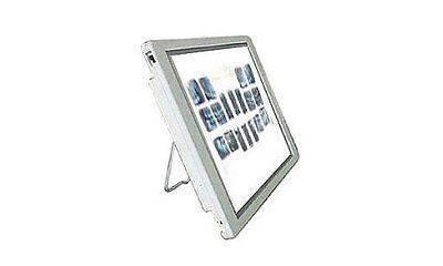 Professional Tpc Negatoscope Xv100 Sealed Led Lights X-raynegativeslide Viewer