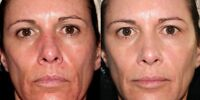 DIAMOND MICRODERMABRASION FACIAL $59 BLACKHEAD WRINKLE SCAR ACNE