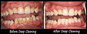 Extremely affordable dental cleanings!
