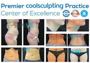 $1000 Cool Sculpting Gift Card