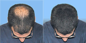 Quick and Easy Solution For Your Hair Loss Problems. Try it Now Kitchener / Waterloo Kitchener Area image 1