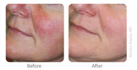 Photorejuvenation (IPL): Treat spider veins,sun damage,age spots
