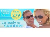 Mobile Laser Teeth Whitening - Wolverhampton, Birmingham, Dudley, Walsall and West Midland area.