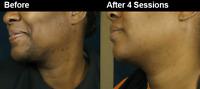 GO Bare! Laser Hair Removal (Men/Women) >STOP< waxing