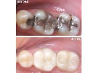 Dental Bridge by Smile Stylers