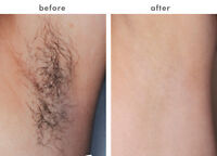 Waxing ~>PAINFUL<~ ((* * LASER * *))  Done on Men/Women