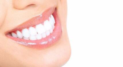 60 % OFF ON TEETH WHITENING Heidelberg Banyule Area Preview