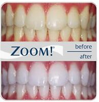 Whiter, Brighter teeth increase self confidence