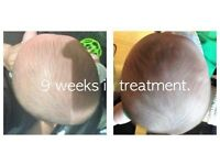 Plagiocephaly. Brachycephaly. Flat Head Syndrome Helmet Treatment.