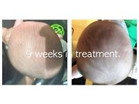 Plagiocephaly. Brachycephaly, Flat Head Syndrome Helmet Treatment