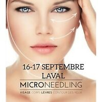 $$ FORMATIONS INTENSIVES SOINS VISAGE, MICRONEEDLING, BEAUTÉ