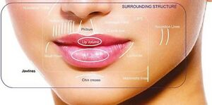 Lip Augmentation at Spoiled Rotten Cosmetic Clinic  Cambridge Kitchener Area image 1