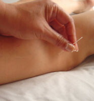 acupuncture, reflexology. herbal medicine. facials,Massage,