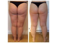 LipofirmPro Inch Loss / Cellulite Reduction / Wrinkle Treatment