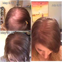 Natural Hair Help - For Balding, Thinning, Damaged or Split Ends