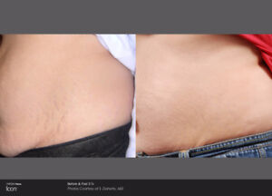 Stretch Marks Treatment ( Ladies) #EverYoung GET EXTRA30%OFF