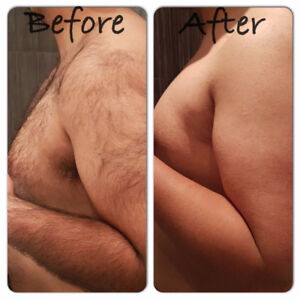 Laser hair removal great specials