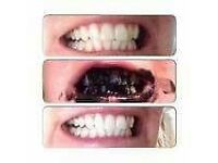 *** SAMPLE POTS OF CHARCOAL TEETH WHITENER***