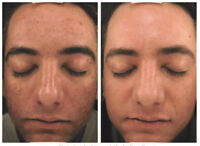 Micro Needling $199 - Improves Acne Scarring and Stretch Marks