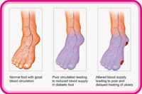 Diabetic Foot/Hand Massage Therapy $45