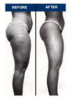 REDUCE THE APPEARANCE OF CELLULITE!