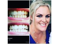 Who wants fabulous white teeth ?? AP24 toothpaste for only £10 a tube