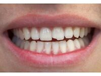 Chipped Tooth and Recommended Options
