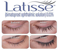 Want longer, fuller and darker eyelashes? Latisse available NOW!