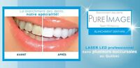 SPECIAL 1 laser teeth whitening treatment for 69$ or 2 for 99$