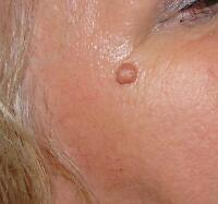 skin blemish removal by certified electrologist