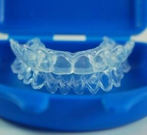 Professional Teeth Whitening /w Custom Trays