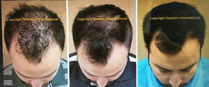 999 CAD!! (reg 4000 CAD) Hair Regrowth Therapy for sale