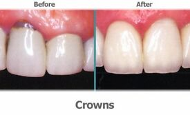 Teeth Caps or Dental Crowns