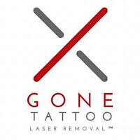 Laser Tattoo Removal!
