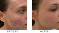 ACNE GOT YOU DOWN FIGHTING ALL THE TIME TRY US