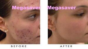 Acne Pimple Treatment Natural Herbal Cream Facial Marks Skin Blackhead Scar Cure