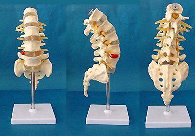 Medical Anatomical Human Spine Pathology Demonstration Model with Herniation Dis