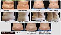 ULTRASOUND LIPOSUCTION | $99 PROMOTIONAL PRICE