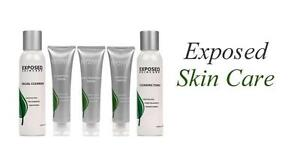 Exposed-Skin-Care-Kit-trattamento-dell-acne